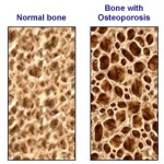 osteoporosis-and-menopause